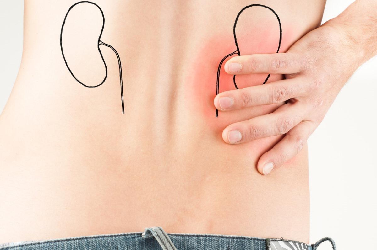 Ultrassonografia de Rins e Vias Urinárias: o que é e porque fazer
